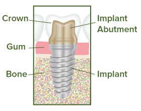 Dental Implant Illustration - Team Dental of Joplin