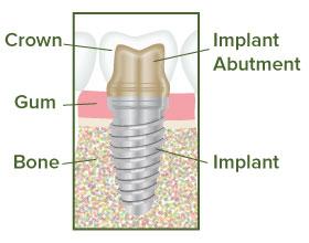 Dental Implant Illustration - Team Dental of Joplin