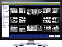 Dental X-rays - Team Dental of Joplin