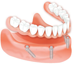 Mini Dental Implants for Denture Stabilization