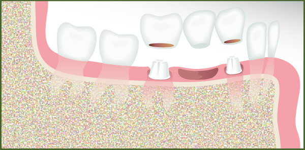 Dental Implant Bridge - Team Dental of Joplin